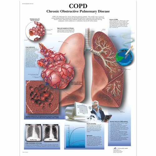 COPD Chronic Obstructive Pulmonary Disease, 4006678 [VR1329UU], Sistema Respiratorio