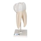 Dente molare superiore a tre radici, in 3 parti - 3B Smart Anatomy, 1017580 [D10/5], Modelli Dentali