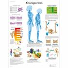 Osteoporosis Chart, 1001472 [VR1121L], Sistema Scheletrico