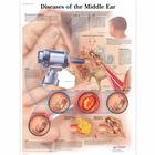 Diseases of the Middle Ear, 1001506 [VR1252L], Naso, Orecchie e Gola
