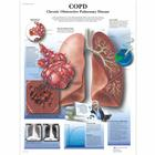 COPD Chronic Obstructive Pulmonary Disease, 1001522 [VR1329L], Sistema Respiratorio