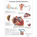 Common Cardiac Disorders Chart, 1001526 [VR1343L], sistema Cardiovascolare