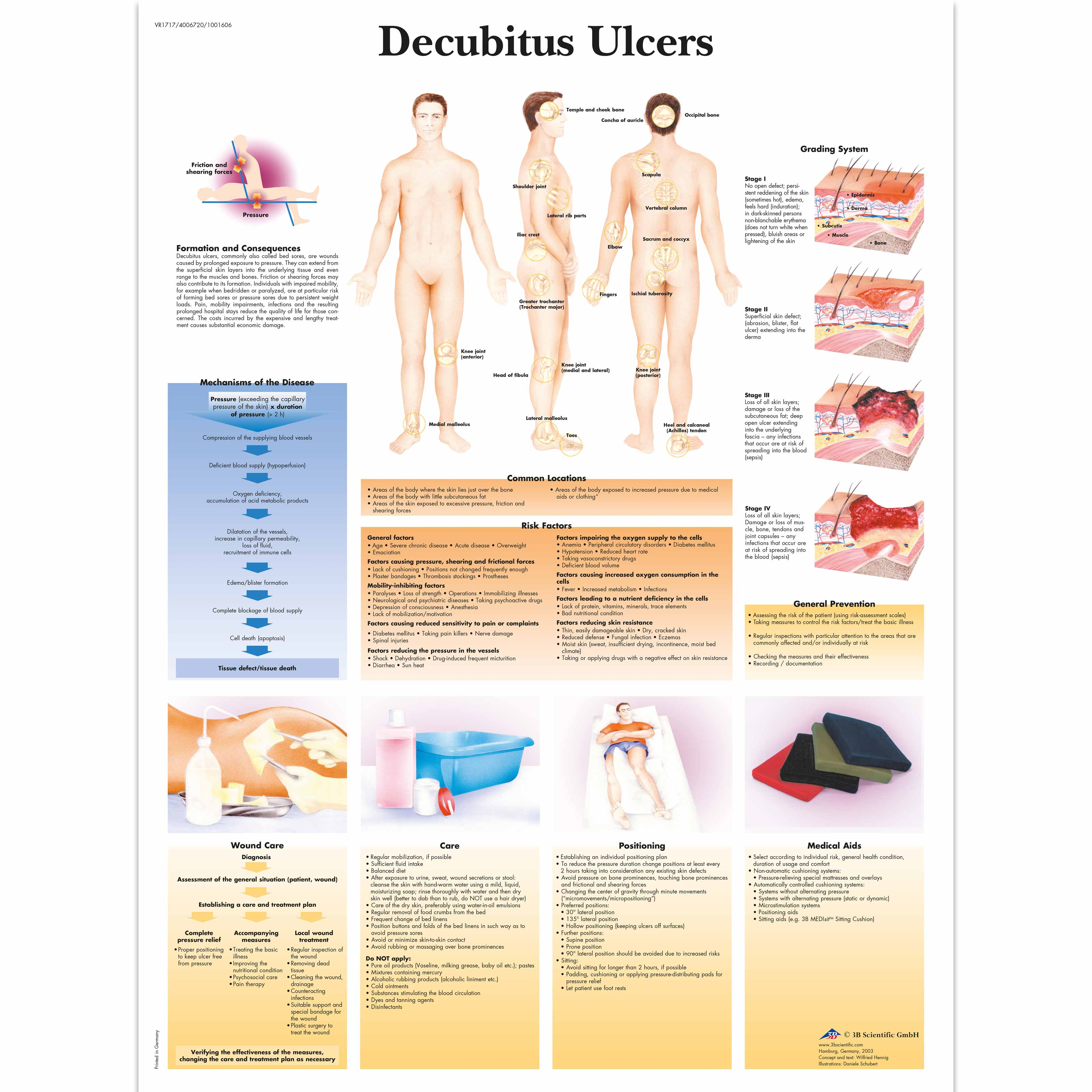 Decubitus Ulcer or Bed Sores: Causes & Treatments